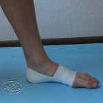 Application fascial - Plantar fasciitis Ills 1.