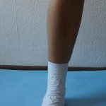 Application stabilization - Immobilization of multidirectional ankle (sprains joint) Ills 1.