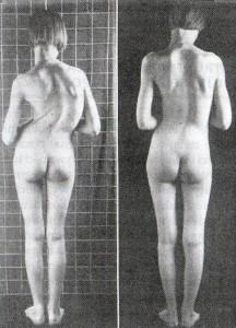 Structural Bodywork-efect1